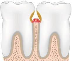 teeth with periodontal pockets