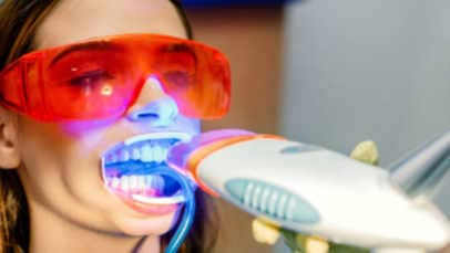 dentist bleaching teeth