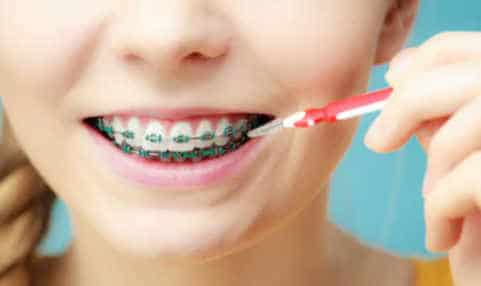 How to prevent and remove teeth braces stains