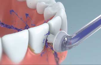 AirFloss removing plaque from teeth