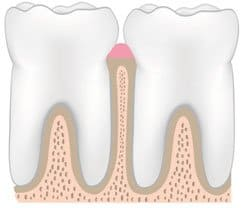 image of healthy teeth and gums