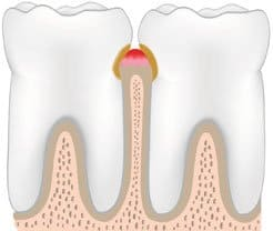 teeth and gums with gingivitits