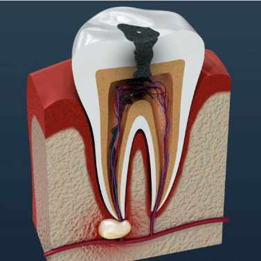 Can you die from a tooth infection?